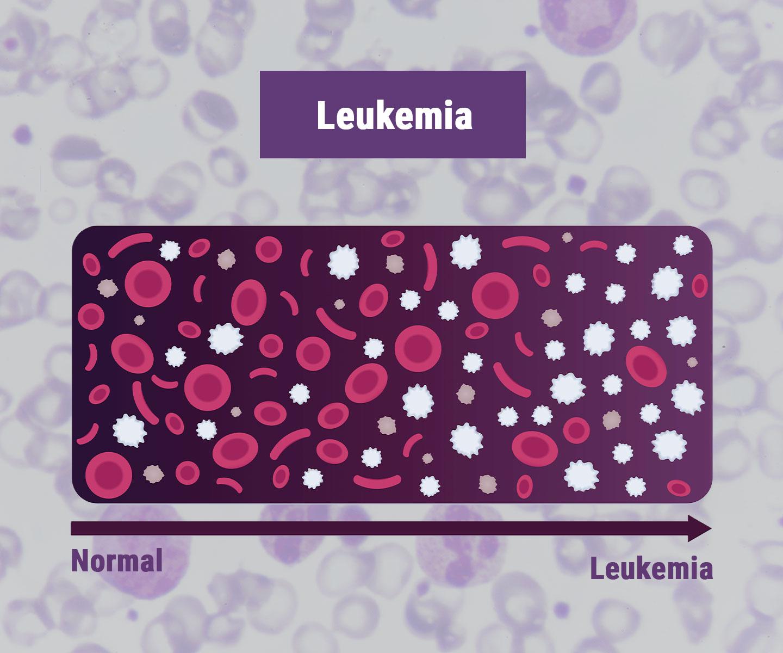 Leukaemia